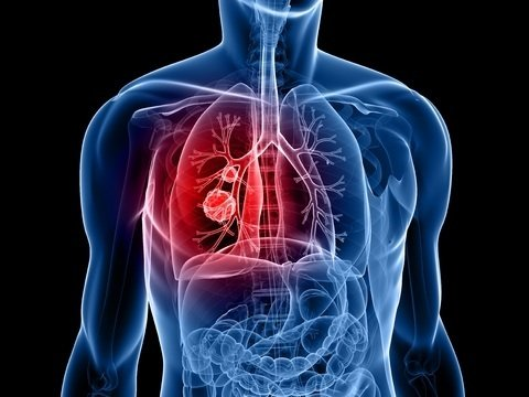 Lung cancer: time to take action